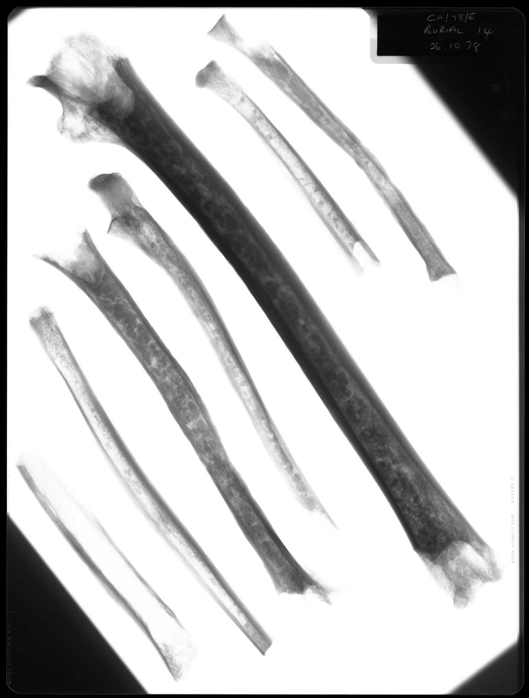 Seven human bones - potentially from the leg and arms.
